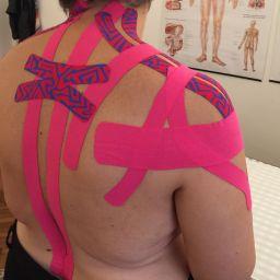 riabilitazione post mastectomia